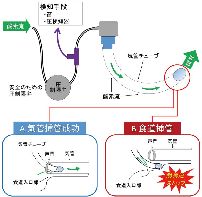 気管挿管補助器具-機能説明図